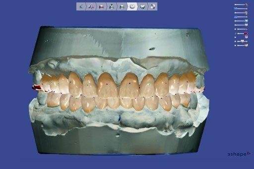 Incredible Digital Smile Design Technology