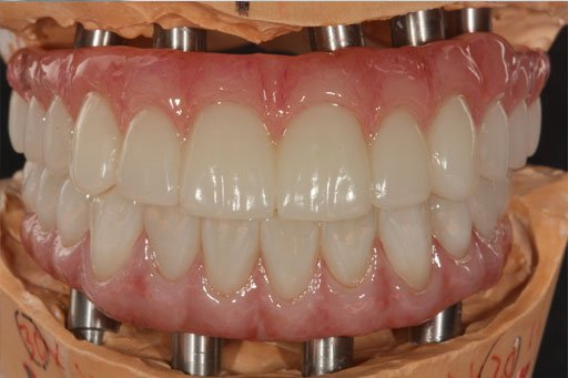 High Quality Zirconia Hybrid Products